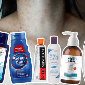 Fungal Acne Treatment: The Ultimate Guide