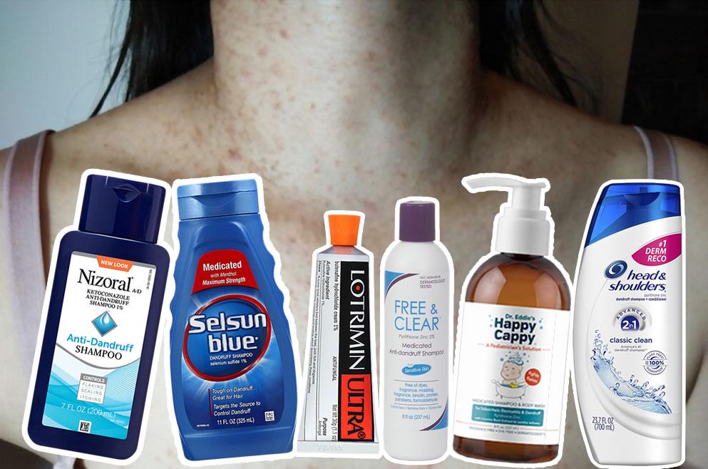 The best fungal acne (Malassezia folliculitis) treatment products