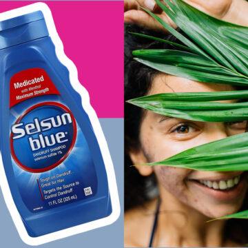 How Can Selsun Blue Anti-Dandruff Shampoo Help With Fungus Acne?