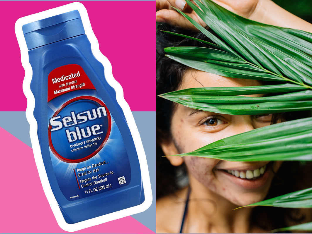 Selsun Blue For Acne - Maximum Strength Medicated Dandruff Shampoo Effective Treatment For Yeast Pimples (Fungal Acne)